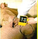 เครื่องตรวจวัดความหนาไขมันและชั้นกล้ามเนื้อ