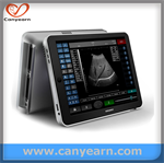 IPAD based 3D option touch screen medical imaging system/Ultrasound scanner/Machine/Sonography