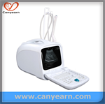 cheapest portable medical imaging system/Ultrasound scanner/Machine/Sonography