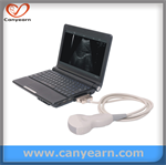 cheapest laptop medical imaging system/Ultrasound scanner/Machine/Sonography