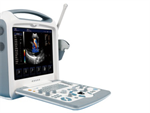 Color Portable Ultrasound Scanner S8I for Pregnancy with 4 USB and 2 Probe Interface Ce Approved