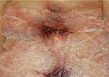 ปลาริวกิวหวานแผ่นตากแห้ง