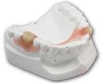 ฟันปลอม Valplast
